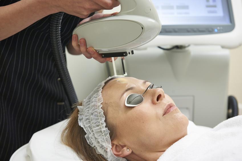 Fotorrejuvenecimiento facial IPL