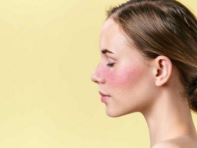 cuperosis rosacea facial centro estetico 2002 málaga - copia